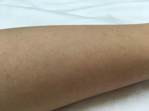 施術後の左腕(1ヶ月後)
