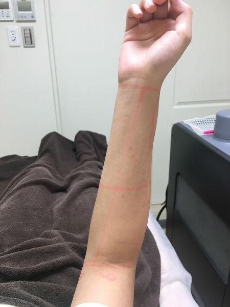 マーキングされた腕の画像