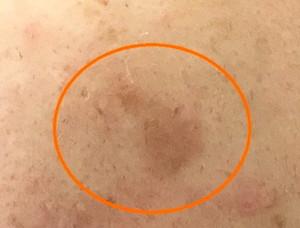 左の頬にできたシミ