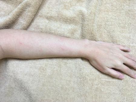 脱毛施術後の左腕