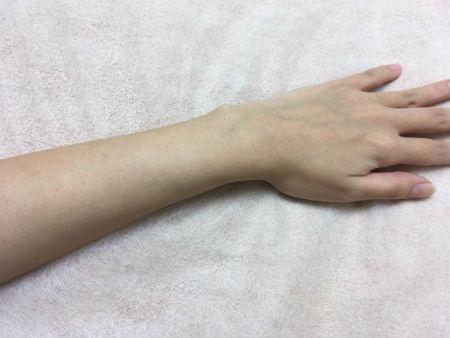 前回施術前の左腕(1ヶ月前)