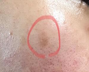 1ヶ月後・右の頬